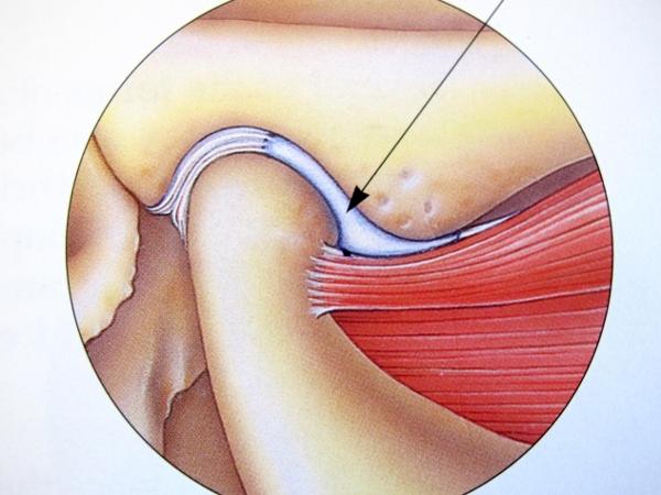 Douleur Blocage Bruit De La Machoire Informations Et Conseils Atm Guide